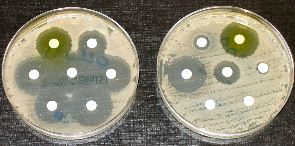 The plate on the left shows how different antibiotics (soaked into a small white disc) can kill bacteria (the clear halo around the white disc showing no bacteria). On the second plate, some of the antibiotics can no longer kill bacteria, which indicates antimicrobial resistance.